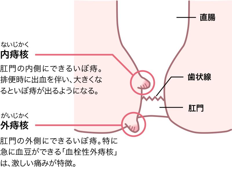 内痔核(いぼ痔)